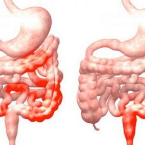 Tìm hiểu về bệnh Crohn